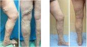 Клинический случай лечения варикоза методом РЧО