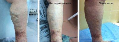 Результат после операции минифлебэктомии.